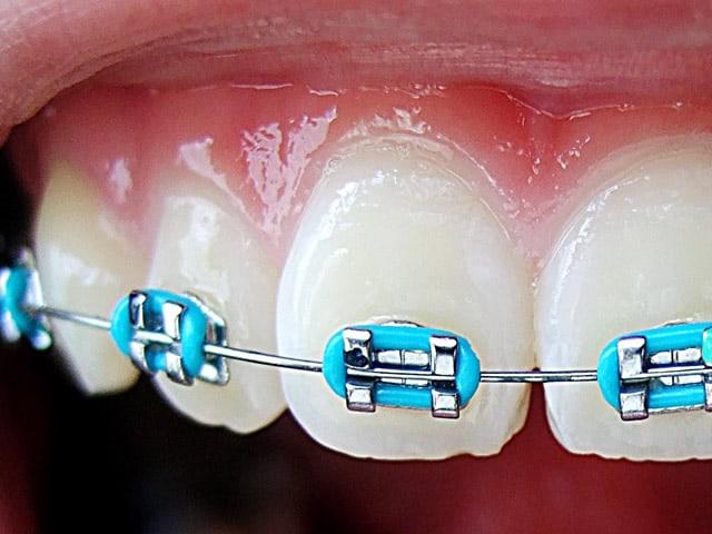 Quanto costa un apparecchio per i denti