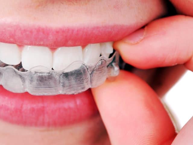 costo moderato le più votate più recenti prima clienti Mascherine per denti storti Invisalign: come funzionano e ...