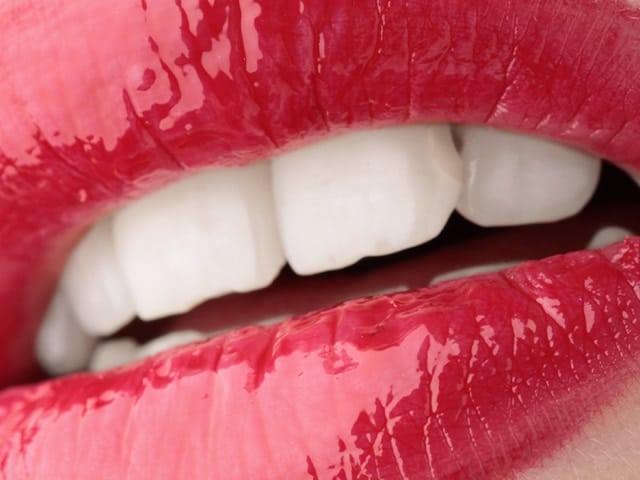 Come sbiancare i denti gialli: qual è il miglior prodotto?