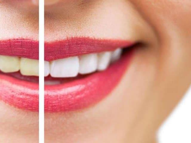 Denti gialli: cause e rimedi