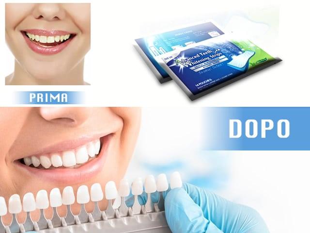 Strisce sbiancanti denti: funzionano? Quali sono le migliori?