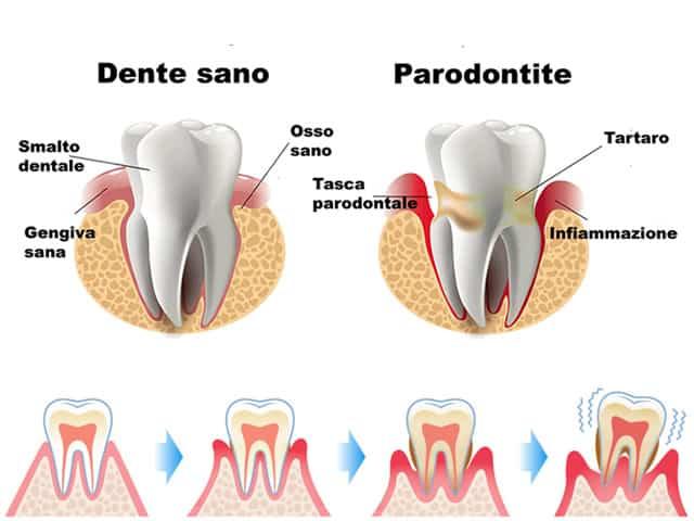 Che cos'è la parodontite: cause, sintomi, rimedi e cure