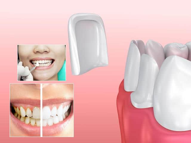 Faccette parodontali cosa sono, a cosa servono e come si applicano
