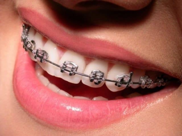 Sbiancare denti con l'apparecchio