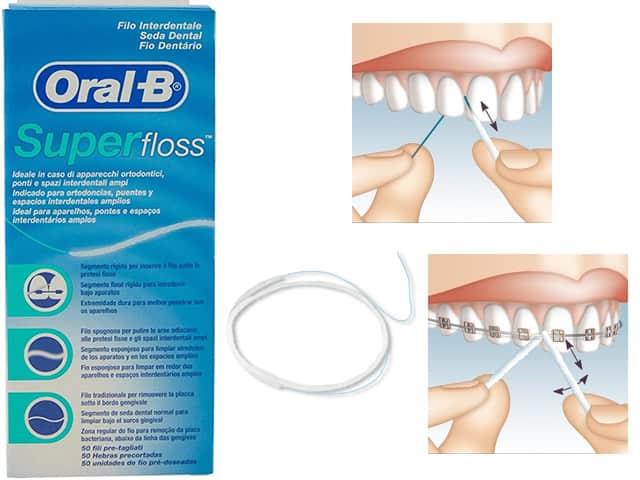 Filo interdentale Oral B SuperFloss: recensioni ed opinioni