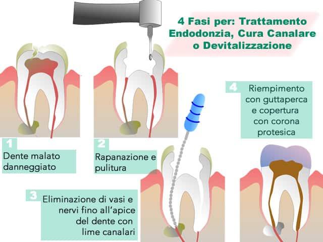 Endodonzia, cura canalare o devitalizzazione
