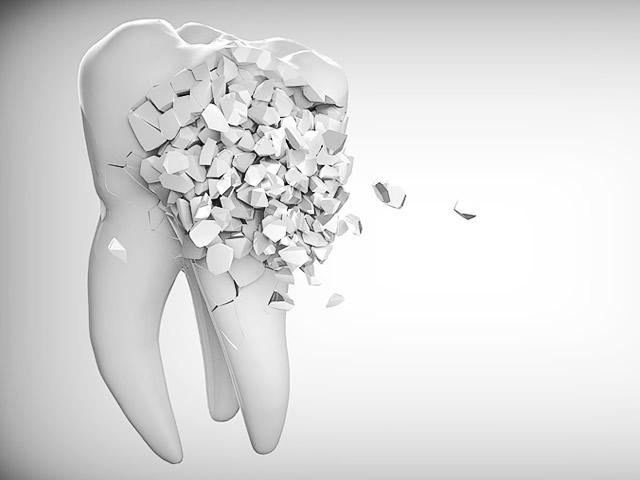 Perché cadono i denti
