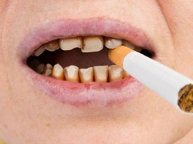 Danni ed effetti del fumo sui denti e sulle gengive