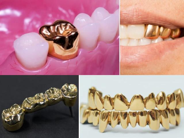 Denti d'oro